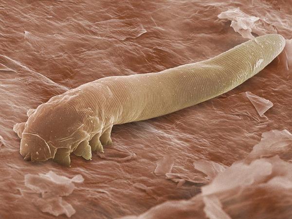 eyelash mite